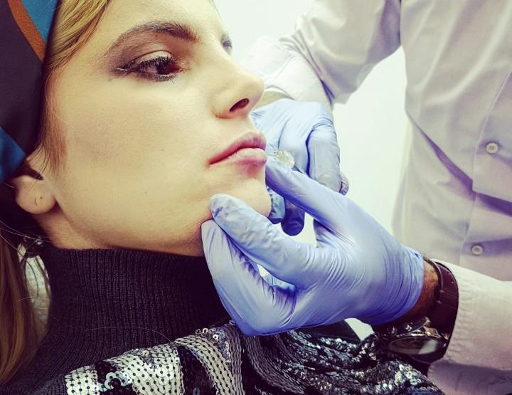 BEAUTY EXPERIENCE: Popunjavanje usana hijaluronom