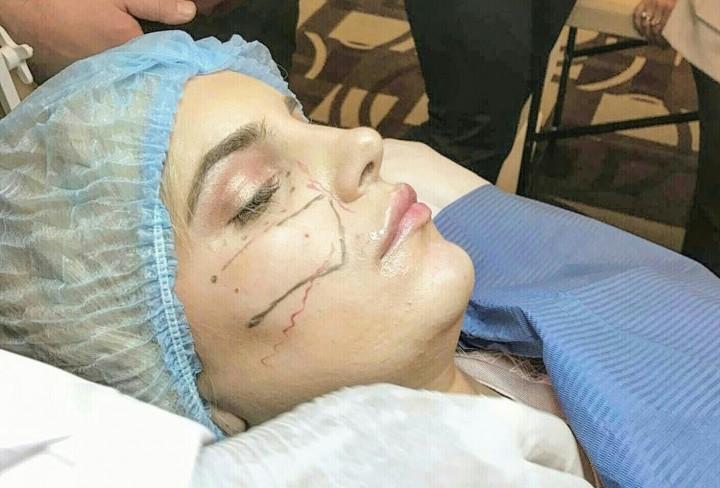 BEAUTY EXPERIENCE: Face Revolution tretman